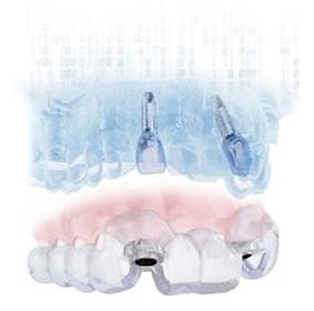 Dentsply-Sirona Simplant